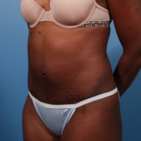 After Photo - Tummy Tuck - Case #2528 - Abdominoplasty - Oblique View