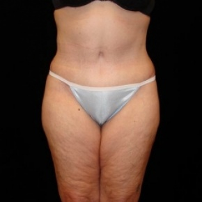 After Photo - Tummy Tuck - Case #2806 - Full Abdominoplasty with Liposuction of Abdomen, Waist, and Flanks - Frontal View