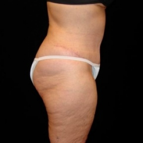 After Photo - Tummy Tuck - Case #2806 - Full Abdominoplasty with Liposuction of Abdomen, Waist, and Flanks - Lateral View