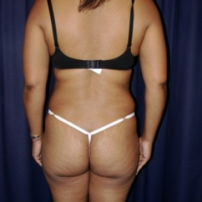 After Photo - Tummy Tuck - Case #2734 - Tummy Tuck/ Lipo-Abdominoplasty - Posterior View