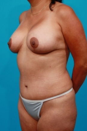 After Photo - Tummy Tuck - Case #2490 - Mommy Makeover - Oblique View