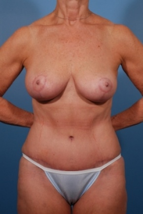 After Photo - Tummy Tuck - Case #2531 - Mommy Makeover - Frontal View