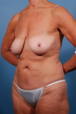 Before Photo - Tummy Tuck - Case #2531 - Mommy Makeover - Oblique View