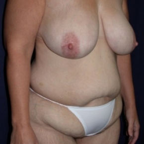 Before Photo - Tummy Tuck - Case #2852 -  Mommy Make Over: Breast Lift & LipoAbdominoplasty - Oblique View