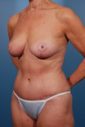 After Photo - Tummy Tuck - Case #2531 - Mommy Makeover - Oblique View