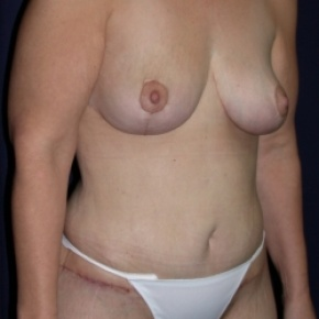 After Photo - Tummy Tuck - Case #2852 -  Mommy Make Over: Breast Lift & LipoAbdominoplasty - Oblique View