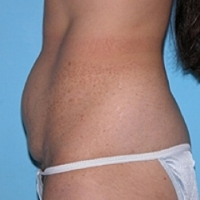 Before Photo - Tummy Tuck - Case #2602 - Oblique View
