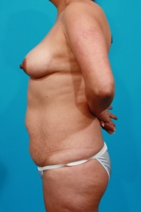 Before Photo - Tummy Tuck - Case #2490 - Mommy Makeover - Lateral View