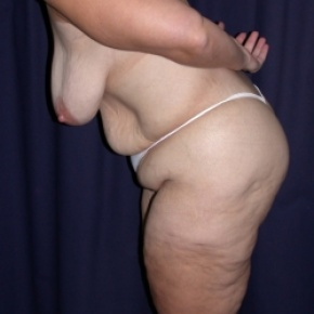 Before Photo - Tummy Tuck - Case #2852 -  Mommy Make Over: Breast Lift & LipoAbdominoplasty - Posterior Oblique View