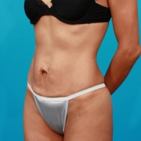 Before Photo - Tummy Tuck - Case #2535 - Oblique View