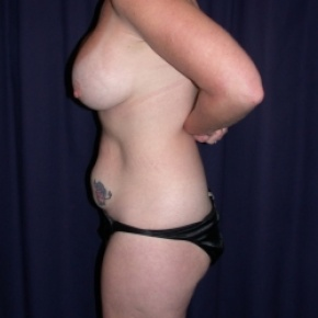 Before Photo - Tummy Tuck - Case #2854 - LipoAbdominoplasty - Lateral View