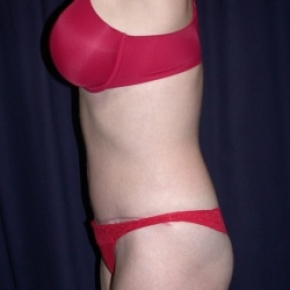 After Photo - Tummy Tuck - Case #2854 - LipoAbdominoplasty - Lateral View