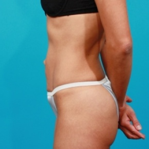 Before Photo - Tummy Tuck - Case #2535 - Lateral View