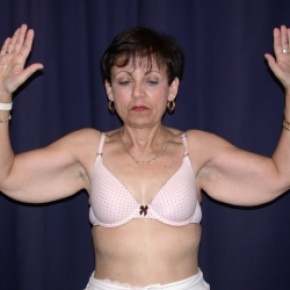 Before Photo - Upper Arm Lift - Case #2746 - Bliateral Brachioplasty with Liposuction of Arms - Frontal View