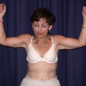 After Photo - Upper Arm Lift - Case #2746 - Bliateral Brachioplasty with Liposuction of Arms - Frontal View