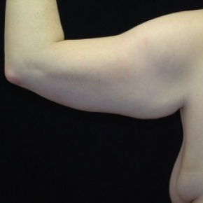 Before Photo - Upper Arm Lift - Case #2846 - Brachioplasty (Arm Lift) - Lateral View
