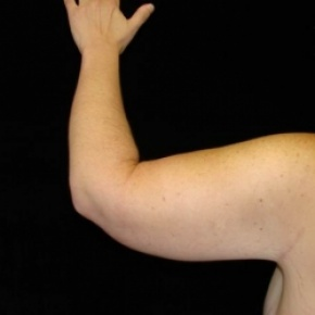 After Photo - Upper Arm Lift - Case #2848 - Brachioplasty (Arm Lift)  - Lateral View