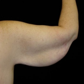 Before Photo - Upper Arm Lift - Case #2848 - Brachioplasty (Arm Lift)  - Posterior Oblique View