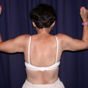 After Photo - Upper Arm Lift - Case #2746 - Bliateral Brachioplasty with Liposuction of Arms - Posterior View
