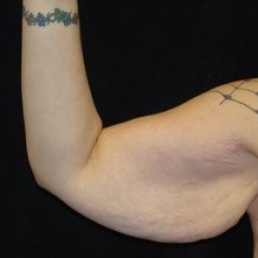Before Photo - Upper Arm Lift - Case #2845 - Brachioplasty (Arm Lift) - Oblique View