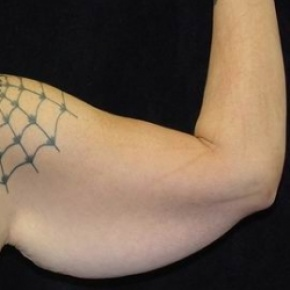 Before Photo - Upper Arm Lift - Case #2845 - Brachioplasty (Arm Lift) - Posterior Oblique View