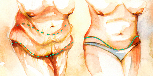 Drawing of Panniculectomy Surgery