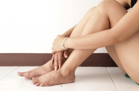 6 ways to correct spider and varicose veins
