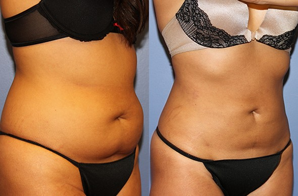 How to Choose between Liposuction and CoolSculpting™?