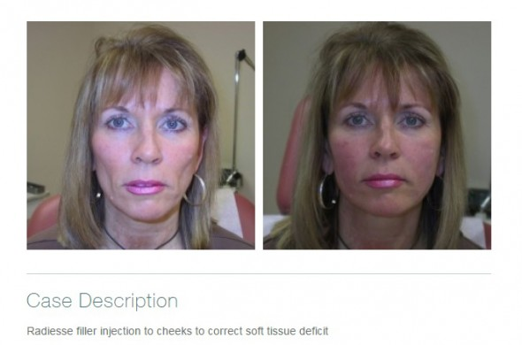 Fillers May Very Well be the Best Thing Since Sliced Bread