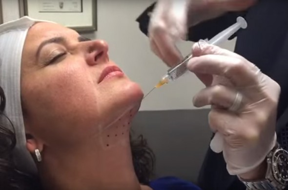 From Botox to CoolSculpting: How Instant Are Instant Results?