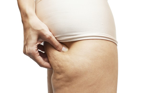 3 best bets for banishing cellulite
