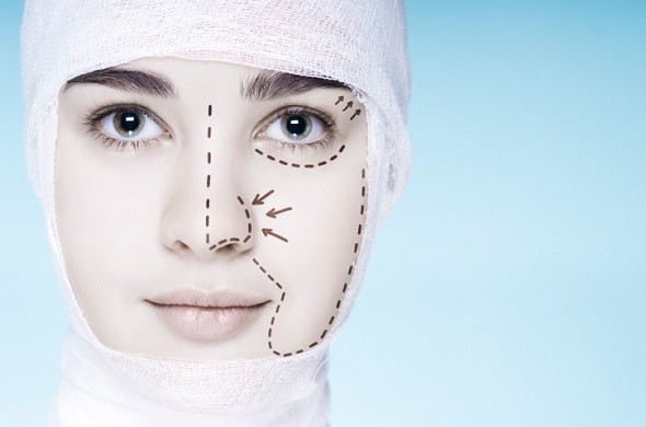 10 Questions about Facelifts