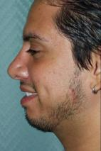 After Photo - Nose Surgery - Case #3019 - Rhinoplasty - Lateral View