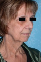 Before Photo - Neck Lift - Case #3515 - Lower Face and Neck Lift with Lower Blepharoplasty - Frontal View