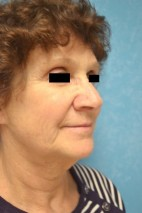 Before Photo - Neck Lift - Case #3521 - Lower Face and Neck Lift  - Frontal View