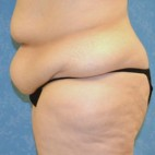 Before Photo - Plastic Surgery After Dramatic Weight Loss - Case #3527 - Circumferential body lift with VASER to circumferential thighs - Frontal View