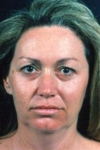 Before Photo - Eyelid Surgery - Case #3556 - Blepharoplasty - Frontal View