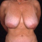 Before Photo - Breast Reduction - Case #3566 - Breast Reduction/Lift - Frontal View