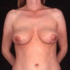 After Photo - Breast Lift - Case #3626 - Frontal View