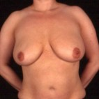Before Photo - Breast Lift - Case #3627 - Breast Augmentation - Frontal View