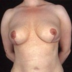 After Photo - Breast Lift - Case #3627 - Breast Augmentation - Frontal View