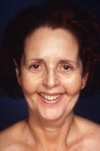 Before Photo - Facelift - Case #3704 - Frontal View