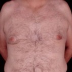 After Photo - Gynecomastia - Case #3706 - Frontal View