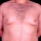 Before Photo - Gynecomastia - Case #3707 - Frontal View