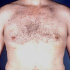 After Photo - Gynecomastia - Case #3708 - Frontal View