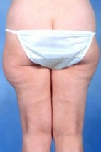 Before Photo - Liposuction - Case #3750 - Frontal View