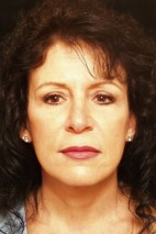 After Photo - Facelift - Case #3873 - Frontal View
