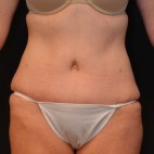 After Photo - Tummy Tuck - Case #3874 - Frontal View