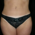 After Photo - Tummy Tuck - Case #3931 - Abdominoplasty - Frontal View