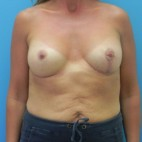After Photo - Breast Augmentation - Case #4054 - Breast Augmentation with Mastopexy (Breast Lift) - Frontal View